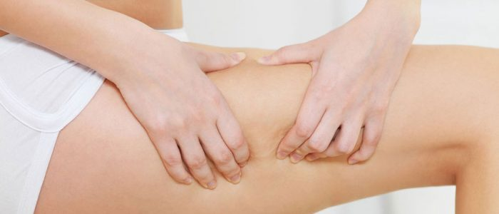Cellulite Removal