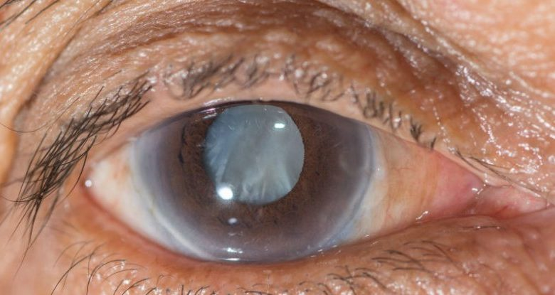 Get the Best Treatment for Cataract